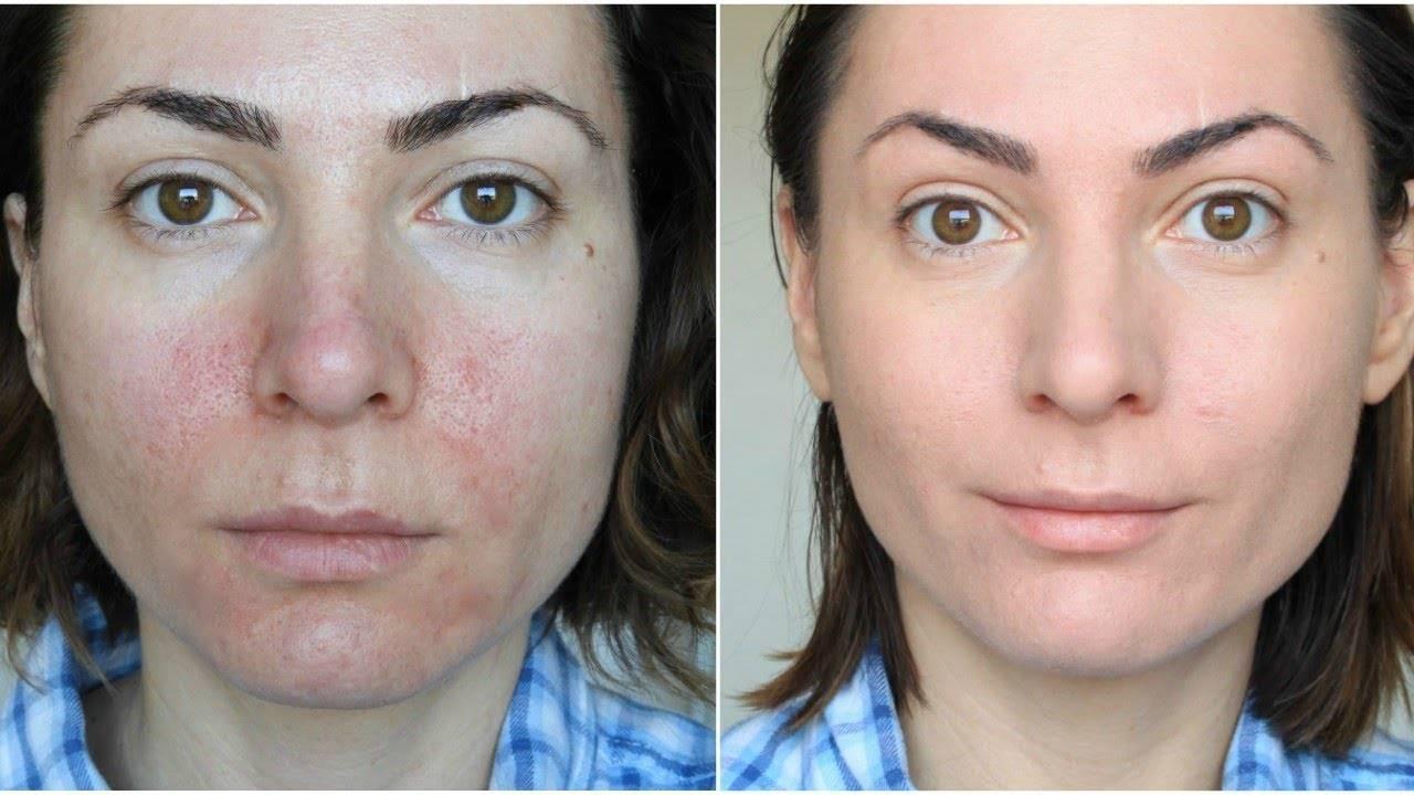 Розацеа на лице: симптомы, причины и лечение