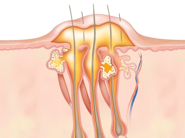 Чирей в подмышечной впадине (фурункул под мышкой)