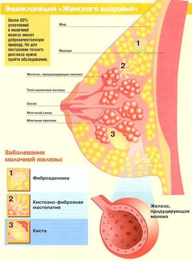 Гели и мази при мастопатии: обзор препаратов, инструкции по применению, отзывы