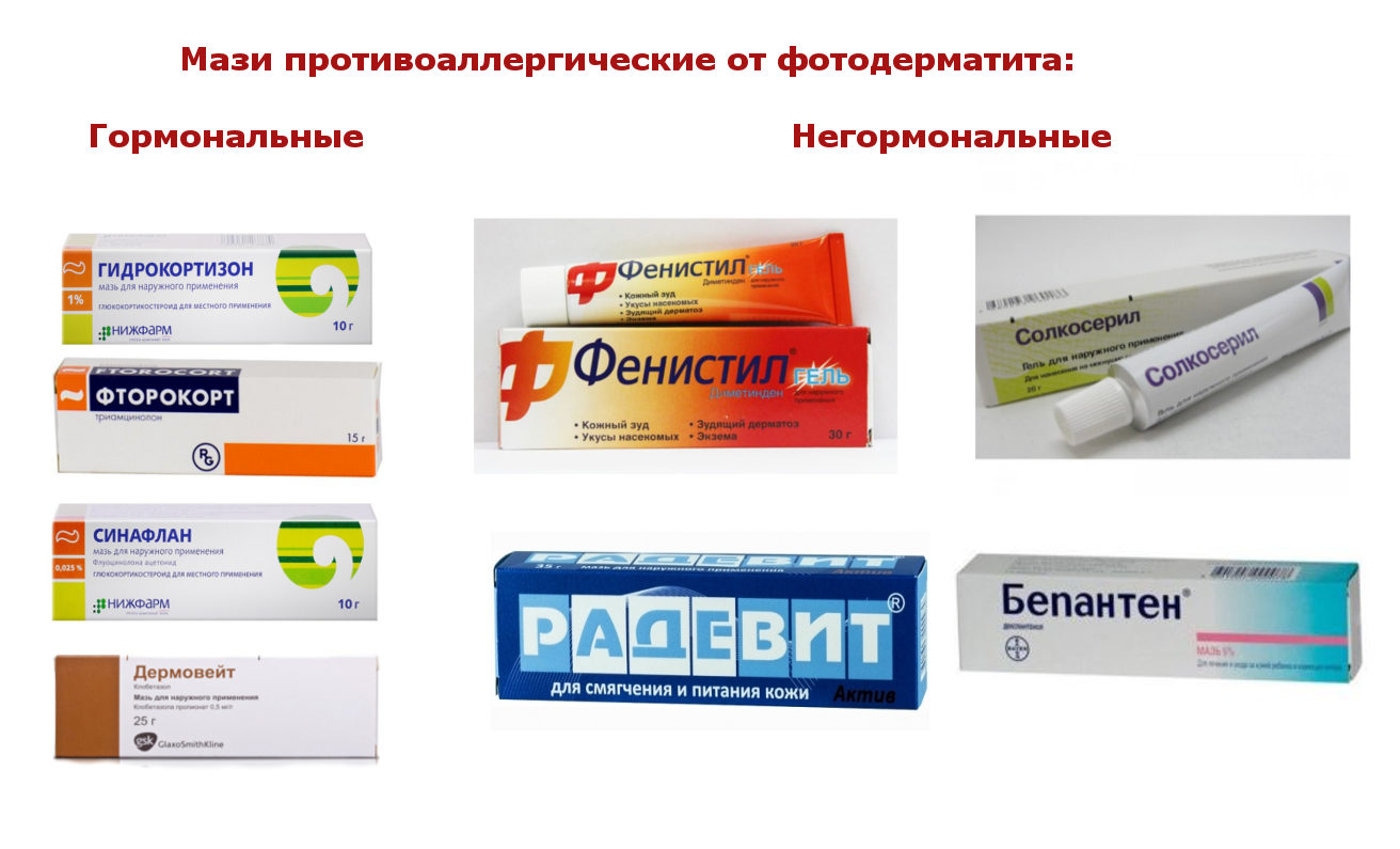 Лечение дерматита народными средствами в домашних условиях травами   kazandoctor.ru