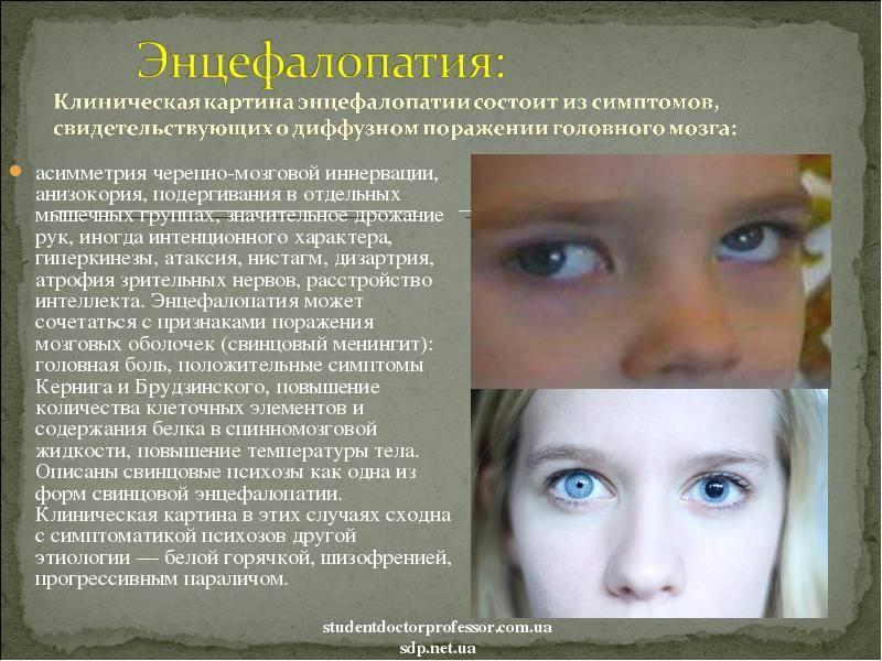Перинатальная энцефалопатия у новорожденных детей: что это такое, симптомы, лечение и последствия заболевания