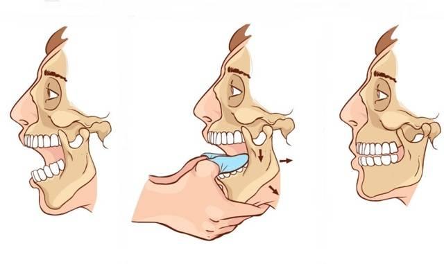 Как расслабить мышцы челюсти: причины напряжения, упражнения и физиопроцедуры | spacream.ru