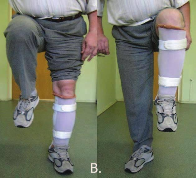 Перелом бедра (бедренной кости): классификация, симптомы, лечение, как долго заживает, последствия переломов