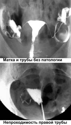 Лапароскопия маточных труб - что это такое, анализы перед операцией