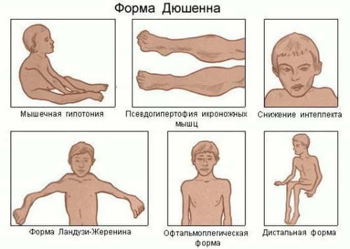 Миопатия: симптомы, принципы диагностики и лечения