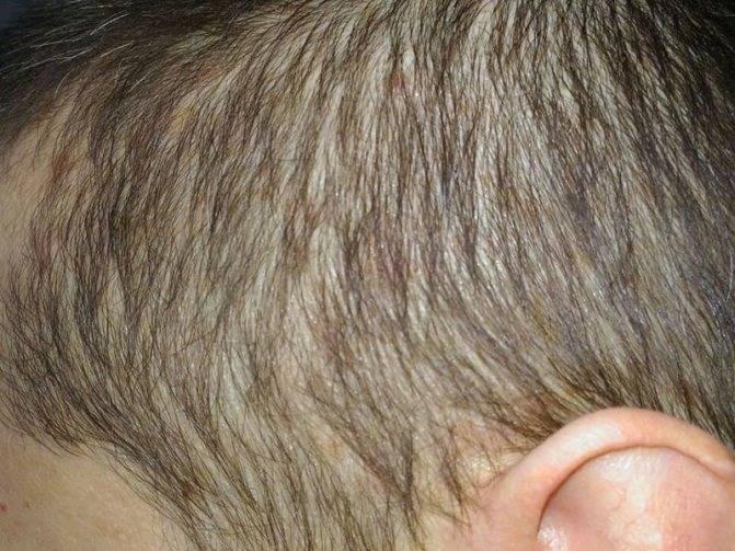 Прыщи на голове и выпадение волос — волосы