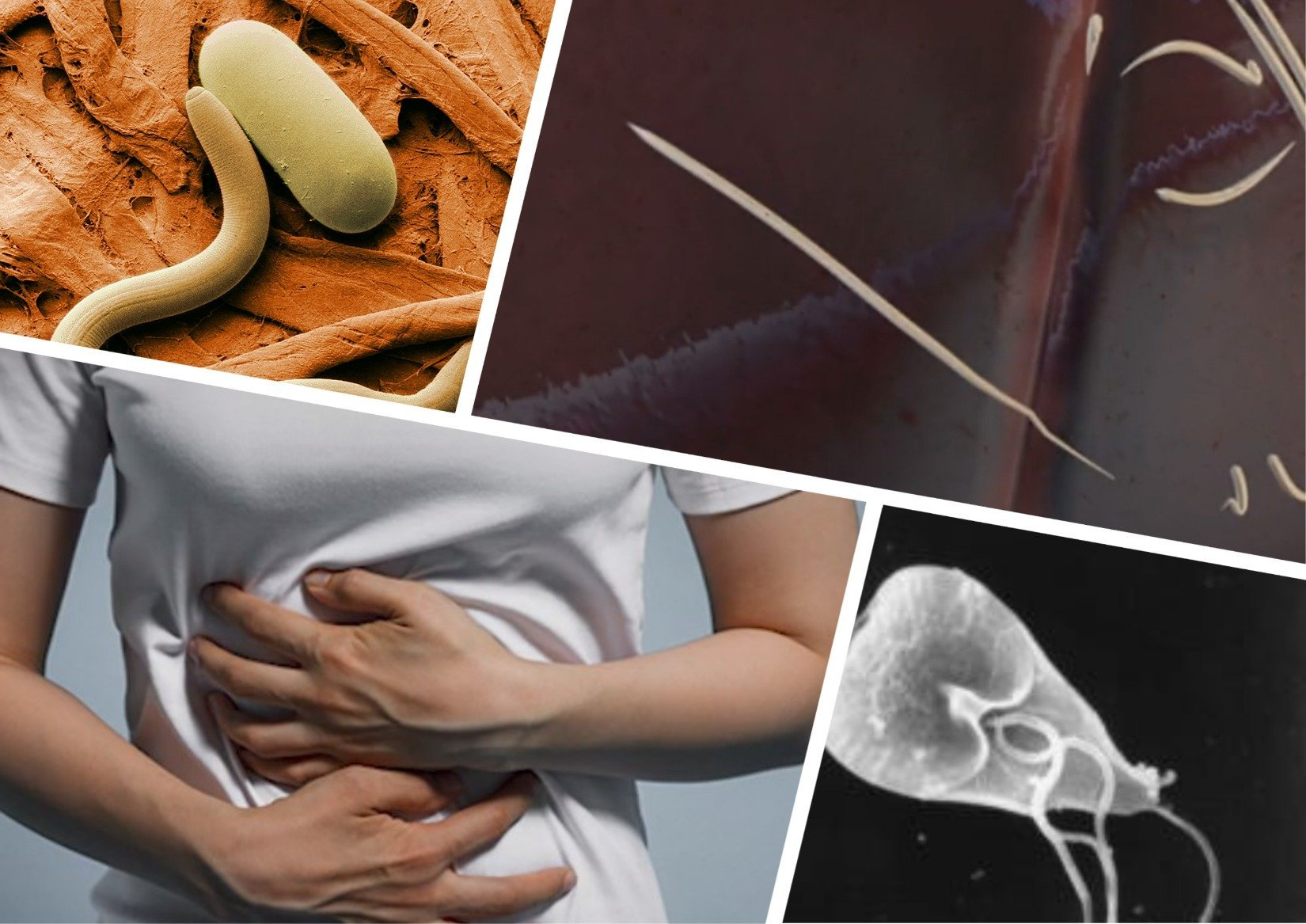 Гельминтоз: симптомы и лечение у взрослых, профилактика заражения