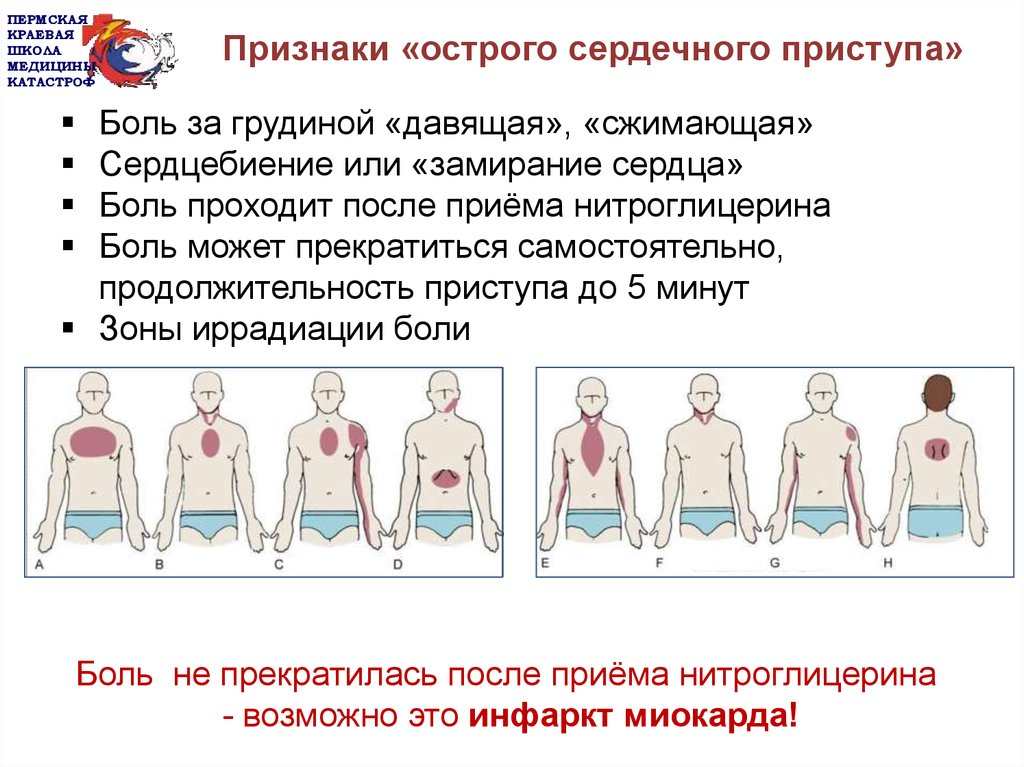 Прединфаркт симптомы и первые признаки у мужчин и женщин