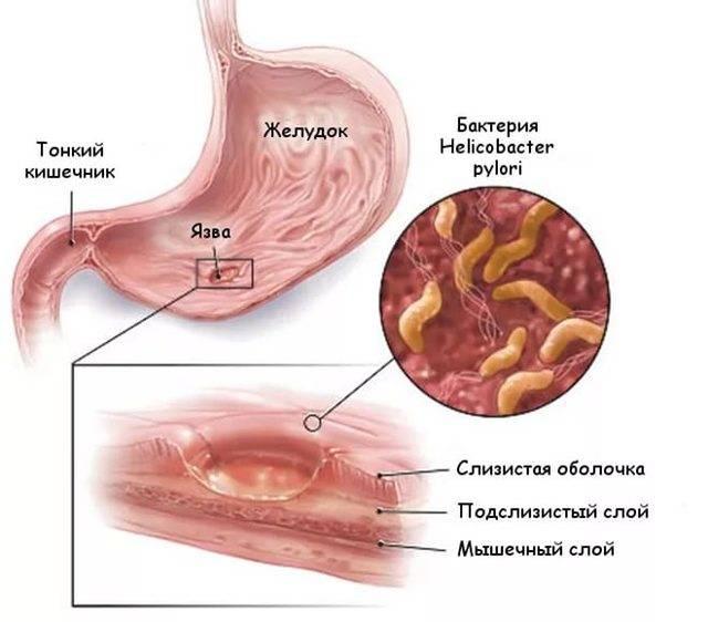 Симптомы и лечение гастрита у женщин