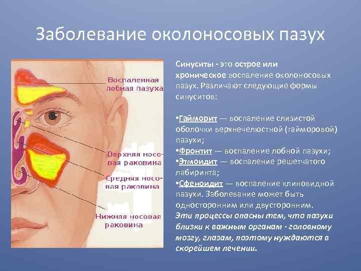 Хроническое воспаление околоносовых пазух