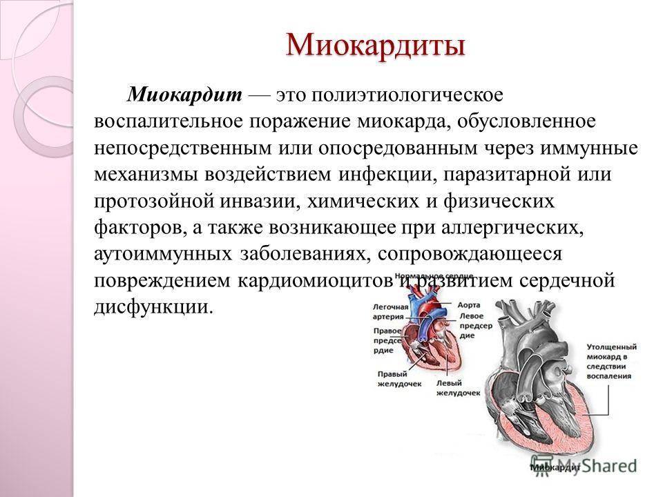 Хронический миокардит: основания классификация и причины, клиническая картина, диагностика, медикаментозная терапия, возможные последствия, прогноз и профилактика