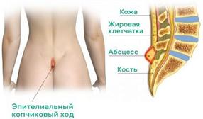 Эпителиальный копчиковый ход (пилонидальная болезнь)