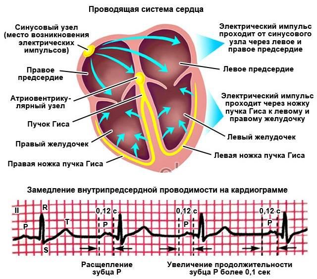 Нарушение проводимости сердца: на экг, виды, лечение, осложнения и прогноз