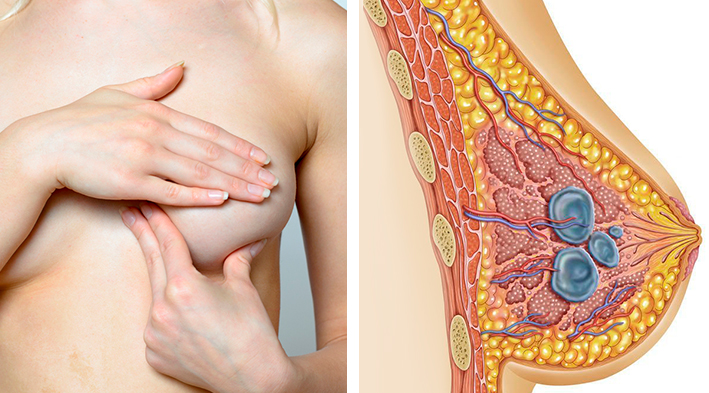 Чем и как лечить мастопатию молочной железы: эффективные средства и методы + можно ли избавиться от нее навсегда