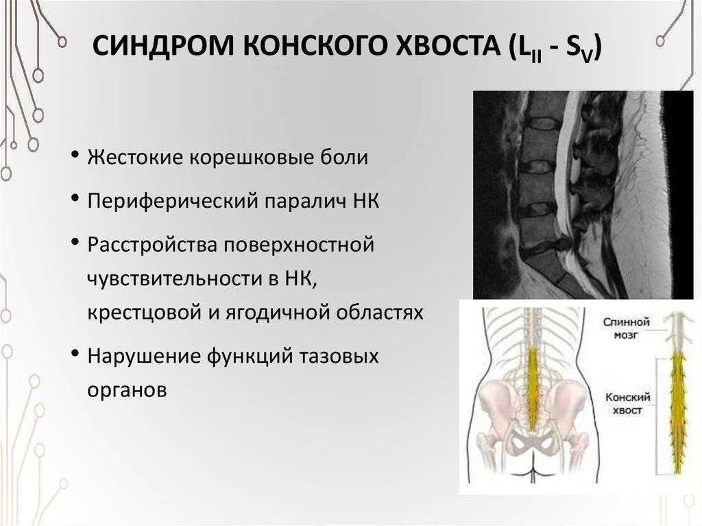Синдром конского хвоста у человека: симптомы и лечение