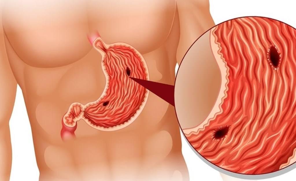 Виды желудочного кровотечения: симптомы и причины