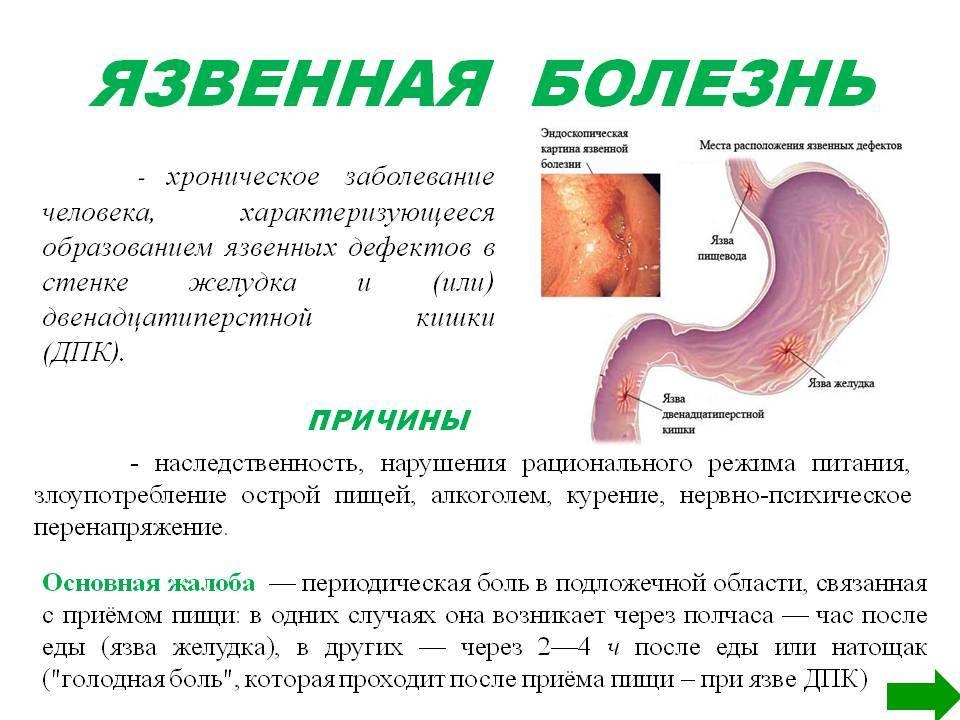 Боли в желудке при приеме кардиомагнила
