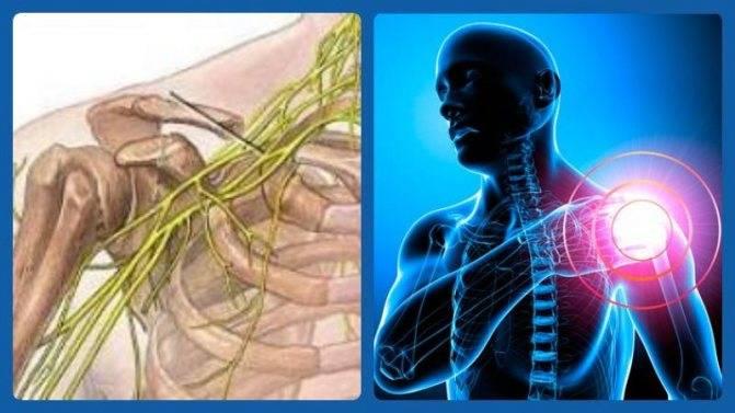 Неврит плечевого нерва - симптомы, лечение