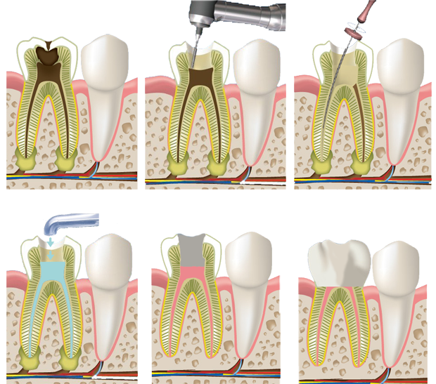 Пульпит зуба лечение народными средствами