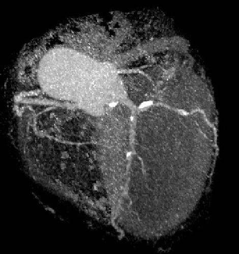 Диагностика кт сердца - показания, противопоказания