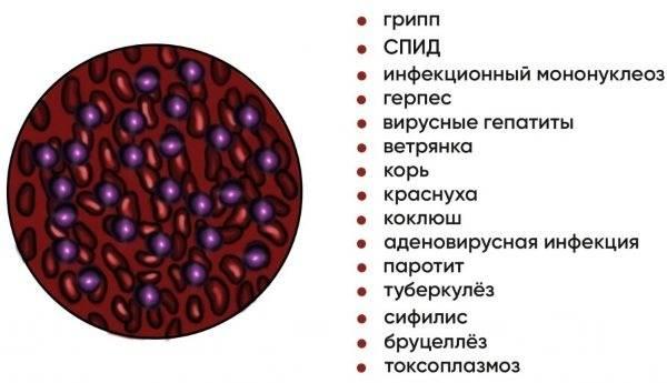 Лимфоциты повышены у ребенка — о чем это говорит и как лечить