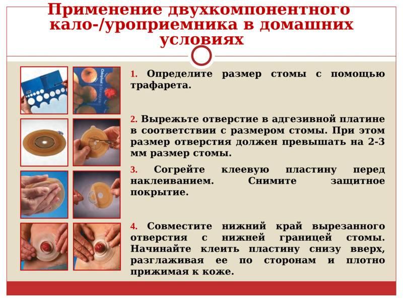 Уход за цистостомой: показания, алгоритм действий и правила ухода за катетером