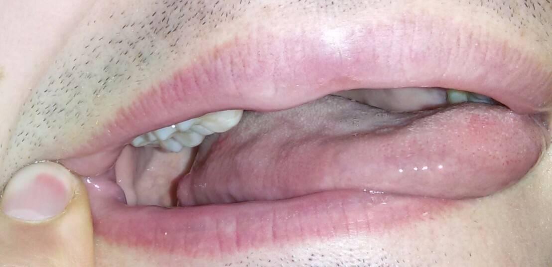 Прыщики на языке ближе к горлу фото – здоровье полости рта