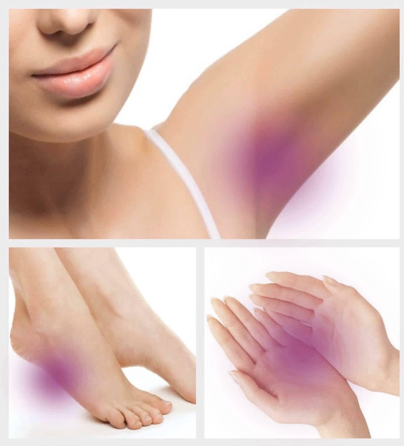 Лечение повышенной потливости рук: современные способы терапии | нет потливости