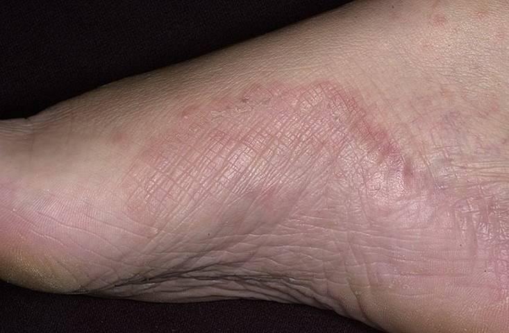Мазь от экземы на ногах: список лучших кремов от патологии