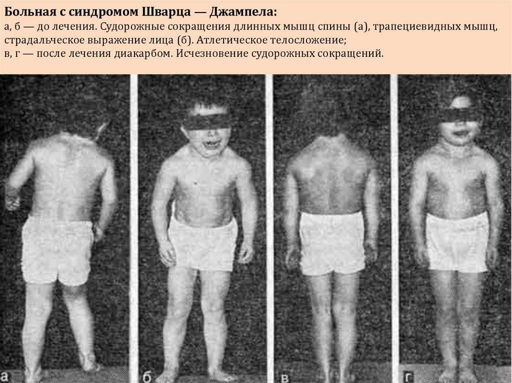 Спинальная мышечная атрофия: виды и причины