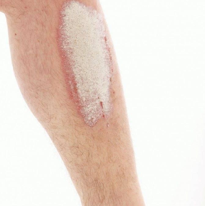 Экзема на ногах причины и лечение народными средствами фото до и после