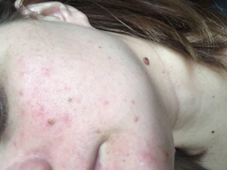 Сыпь на лице: возможные причины высыпаний у взрослых, места локализации, как бороться с кожной сыпью