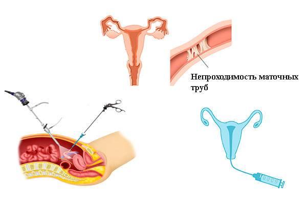 Сальпингит (воспаление маточных труб). причины, симптомы и признаки, диагностика и лечение болезни