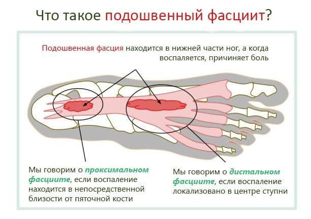 Почему болит пятка при ходьбе: причины болей в пятке после сна, методы лечения