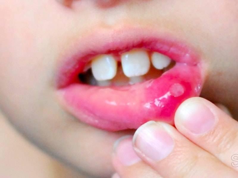 Герпетический стоматит: как определить, способы лечения - много зубов