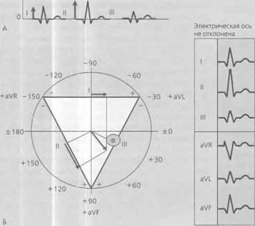 Горизонтальное положение электрической оси сердца – что это такое