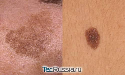 Почему появляются красные круглые пятна на коже обзор заболеваний и методов лечения