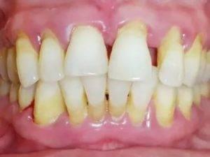 Консервативное лечение пародонтоза. парадонтоз: как спасти зубы и какие лекарства помогают. эффективность народных рецептов