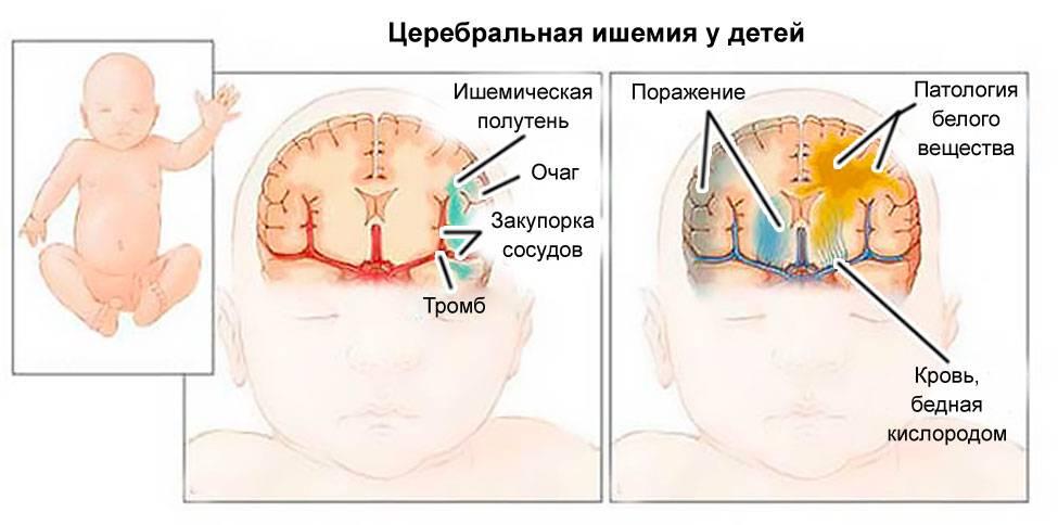 Энцефалопатия у детей: причины, симптомы и особенности лечения
