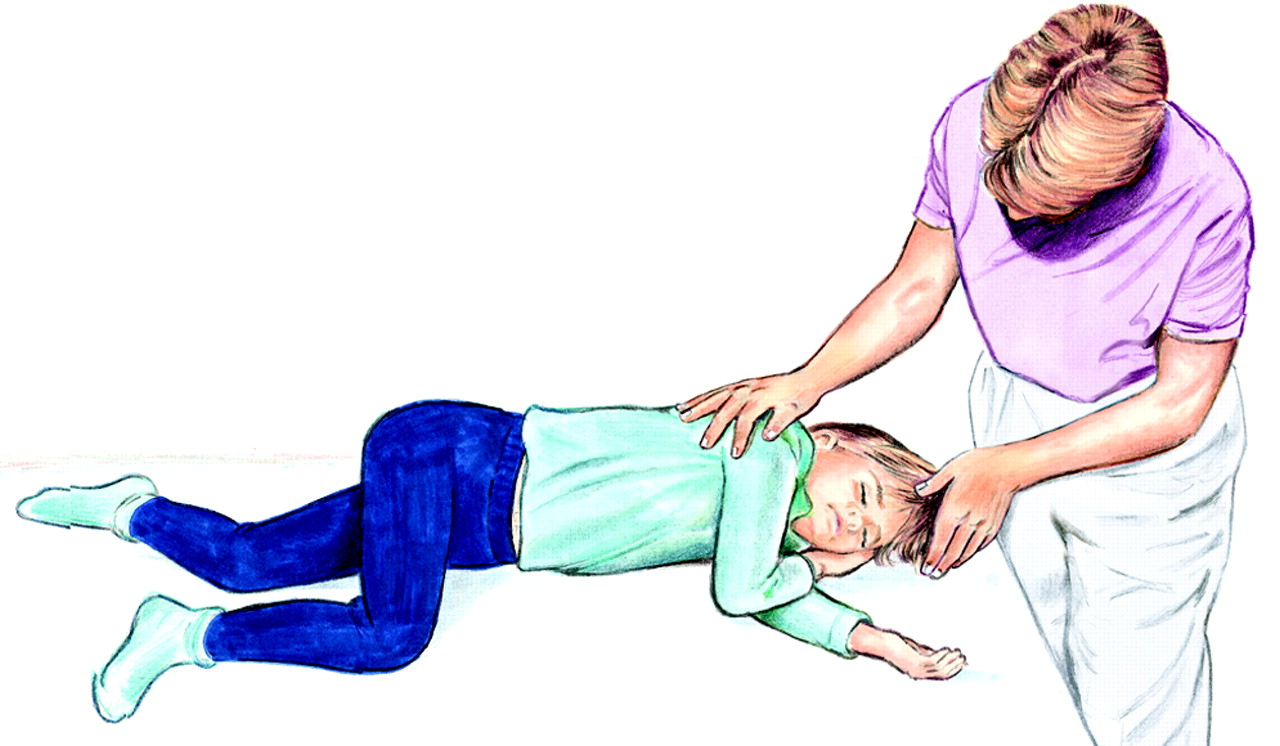 Симптоматическая эпилепсия у детей: причины, клинические проявления и лечение | малыш здоров!