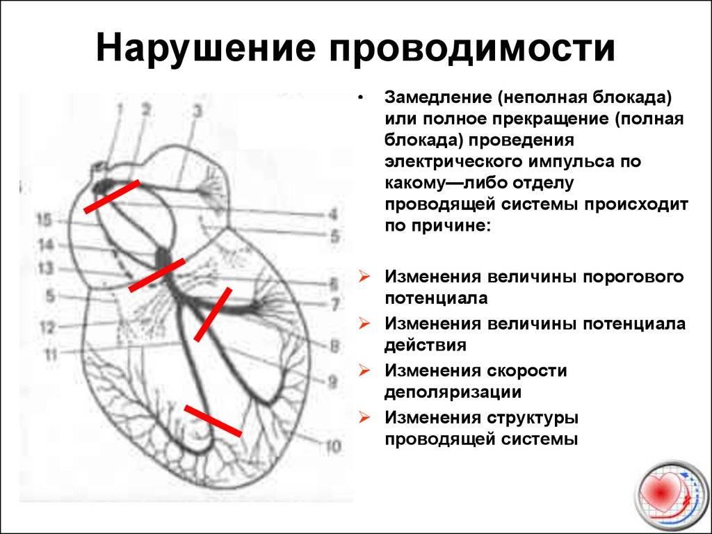 Нарушение внутрипредсердной проводимости что это такое — сердце