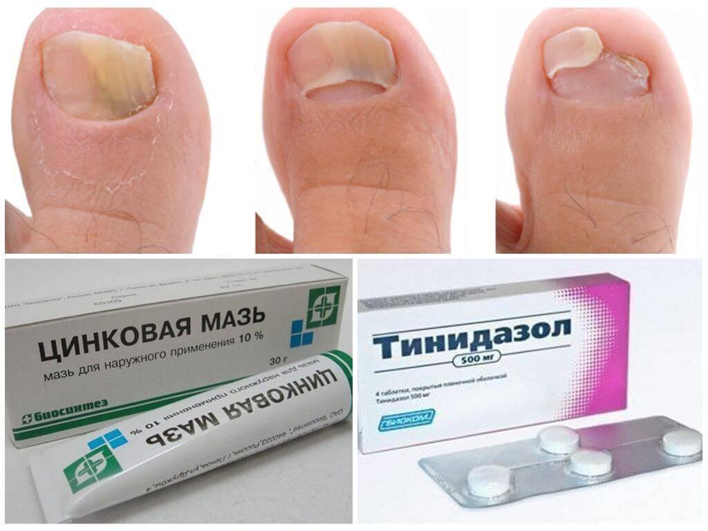 Онихомикоз ногтей: лечение препаратами (недорогими и эффективными), фото, профилактика