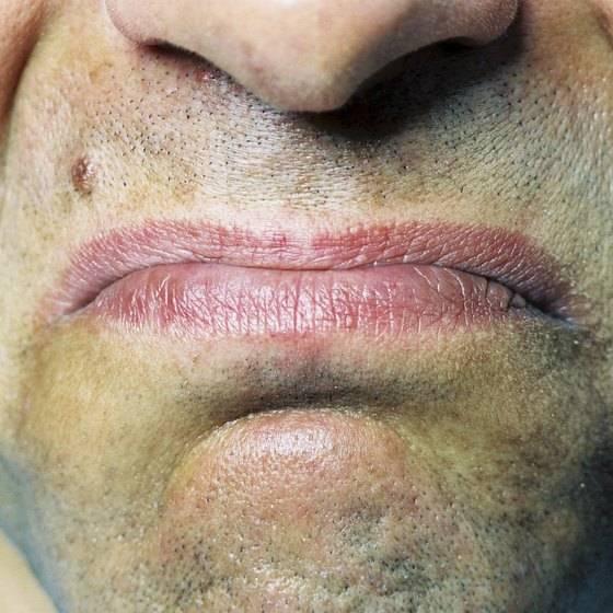 Металлический привкус во рту: причины появления у женщин и мужчин