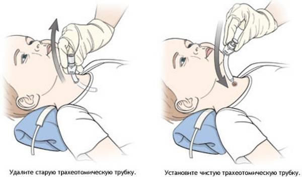 Методика проведения аспирационной санации верхних дыхательных путей