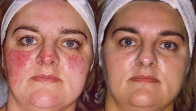 Розацеа на лице – причины и лечение, как бороться с заболеванием!
