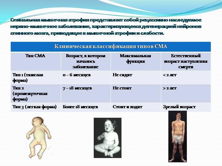 Спинальная мышечная атрофия, поражающая детей и взрослых