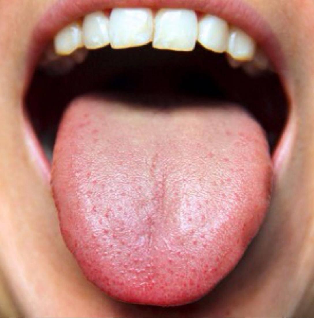 Металлический привкус во рту - признак болезни | компетентно о здоровье на ilive