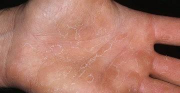 Экзема на ногах и руках - причины и лечение народными средствами