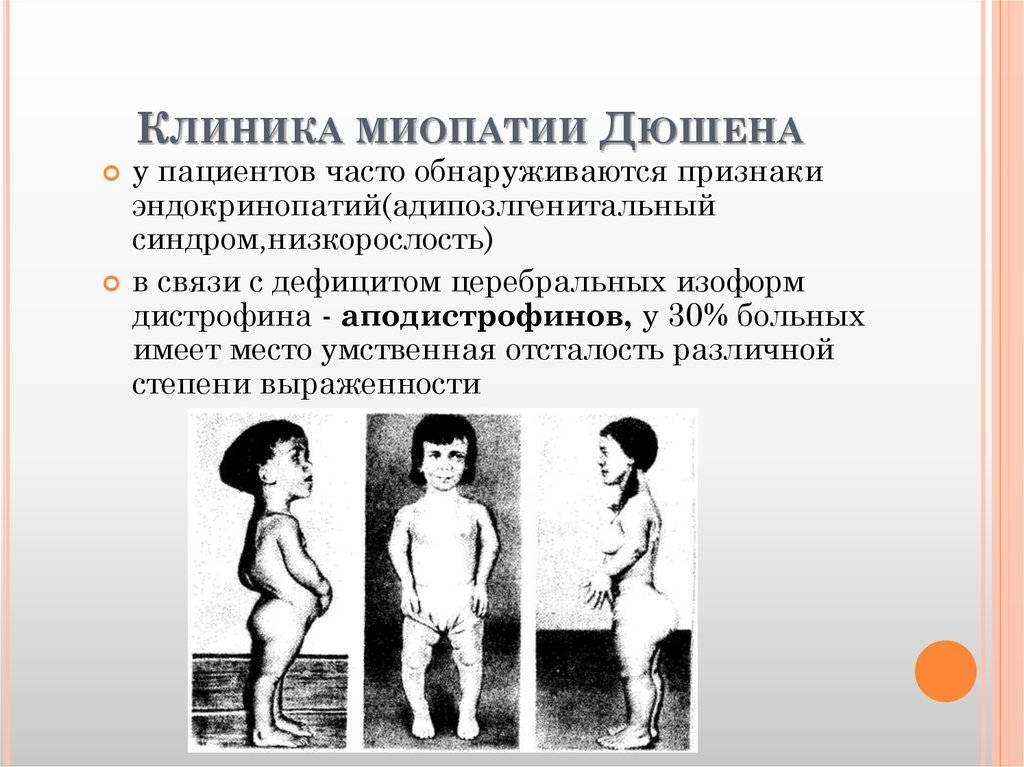 Миодистрофия дюшенна: причины синдрома, симптоматика, диагностика, как лечить