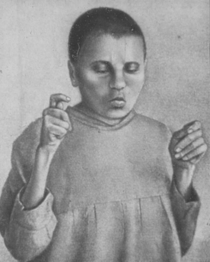 Кататонический синдром — википедия с видео // wiki 2